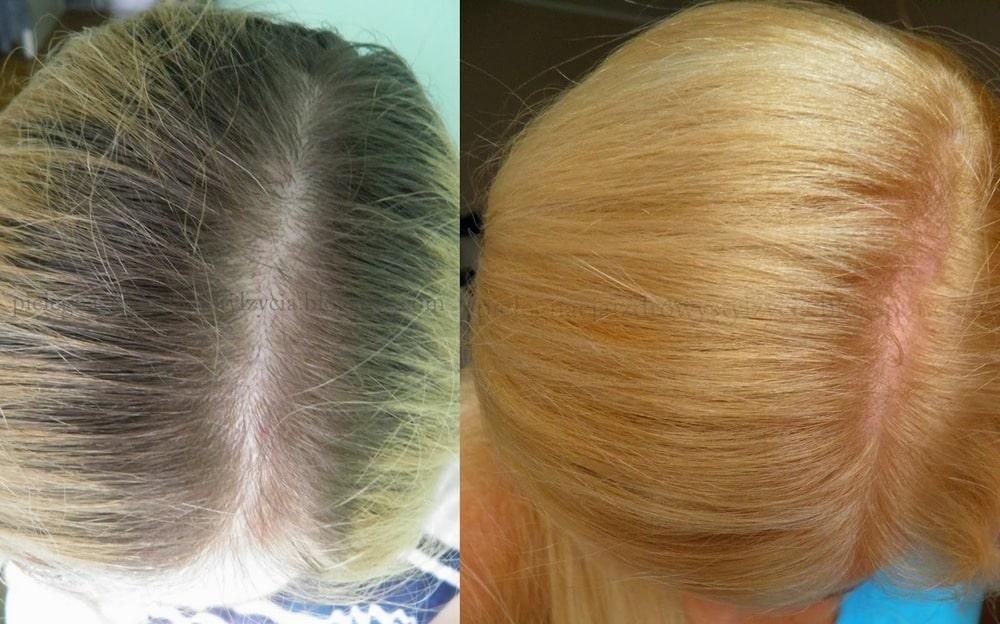 Schwarzkopf Color Mask 1010 efekty ciemny blond